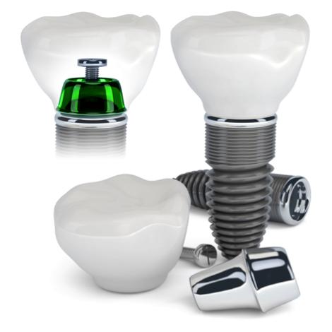 Dentist Silver Spring