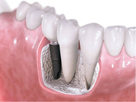 Silver Spring dental implants